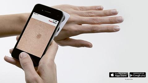 Resultado de imagen de movil cancer piel